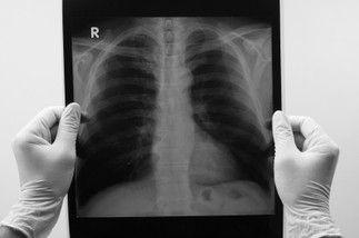 Médecin Tabacologue